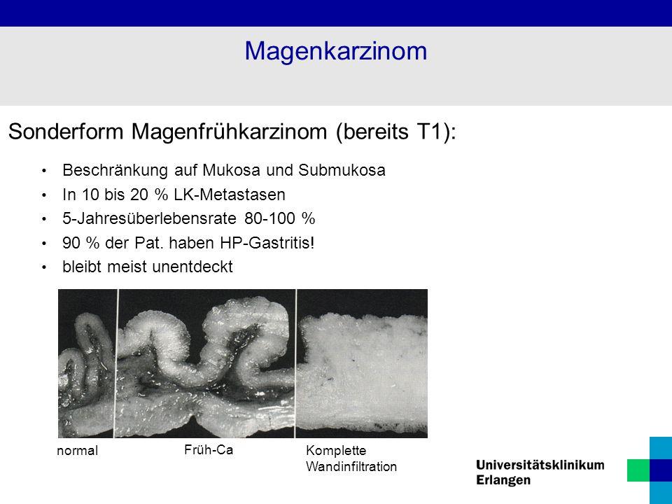 Magenkarzinom Sonderform Magenfrühkarzinom (bereits T1):