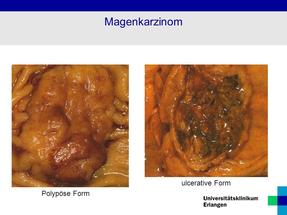 Magenkarzinom ulcerative Form Polypöse Form