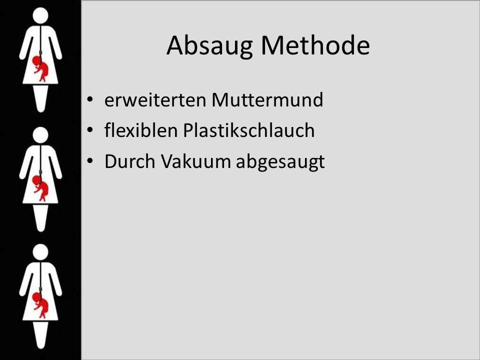 Absaug Methode erweiterten Muttermund flexiblen Plastikschlauch