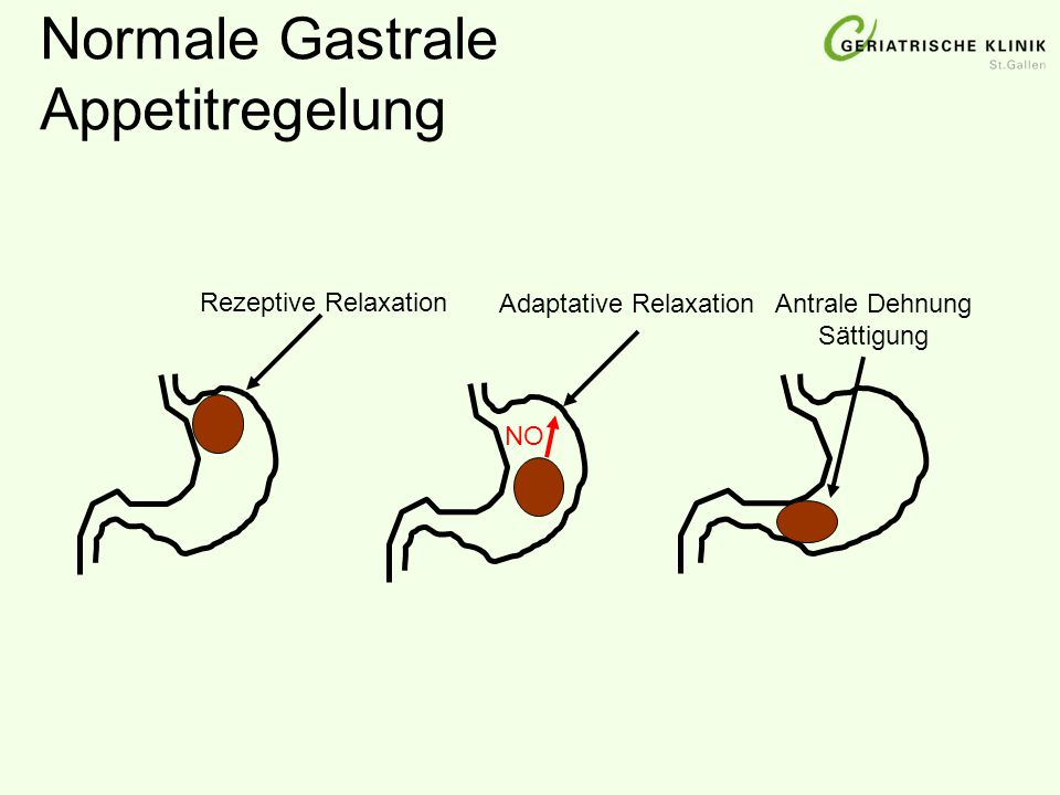 Normale Gastrale Appetitregelung