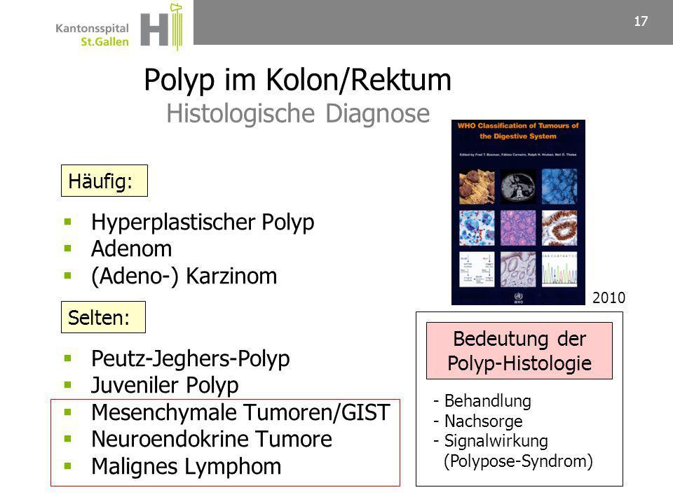 Polyp im Kolon/Rektum Histologische Diagnose