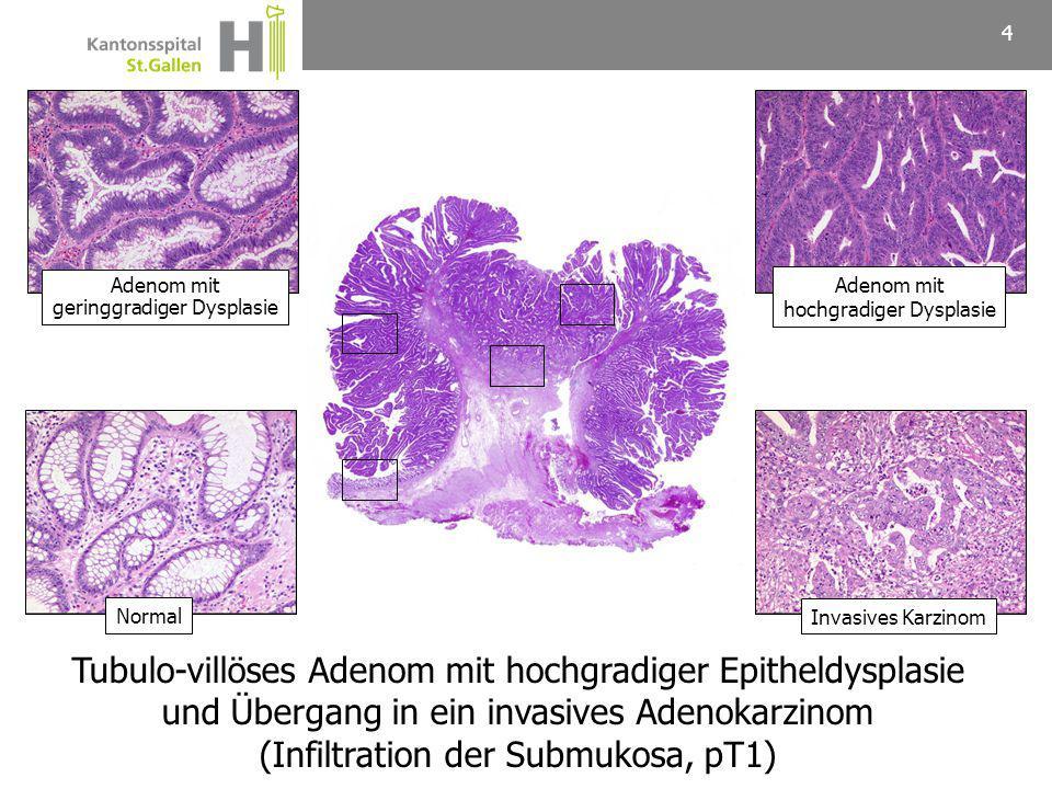 Tubulo-villöses Adenom mit hochgradiger Epitheldysplasie