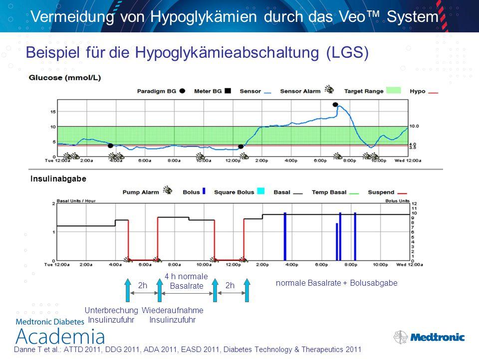 Vermeidung von Hypoglykämien durch das Veo™ System