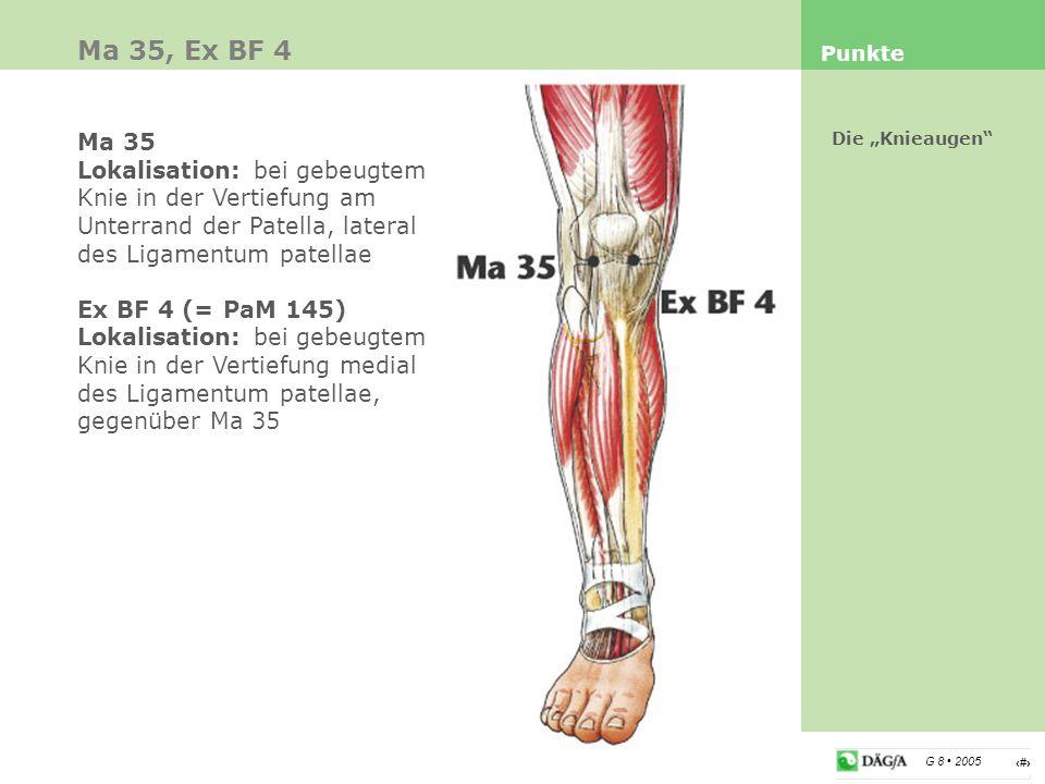 Ma 35, Ex BF 4 Punkte. Ma 35. Lokalisation: bei gebeugtem Knie in der Vertiefung am Unterrand der Patella, lateral des Ligamentum patellae.