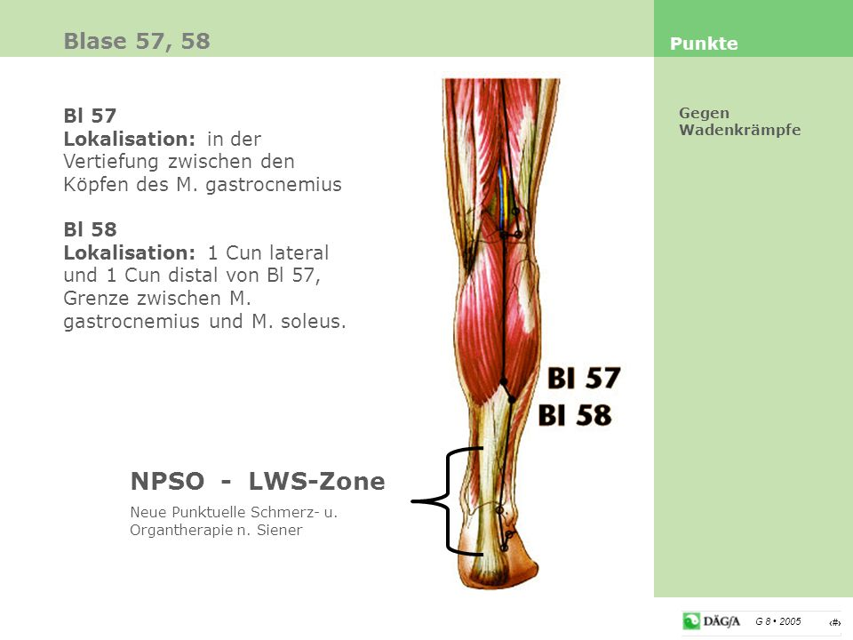 NPSO - LWS-Zone Blase 57, 58 Bl 57