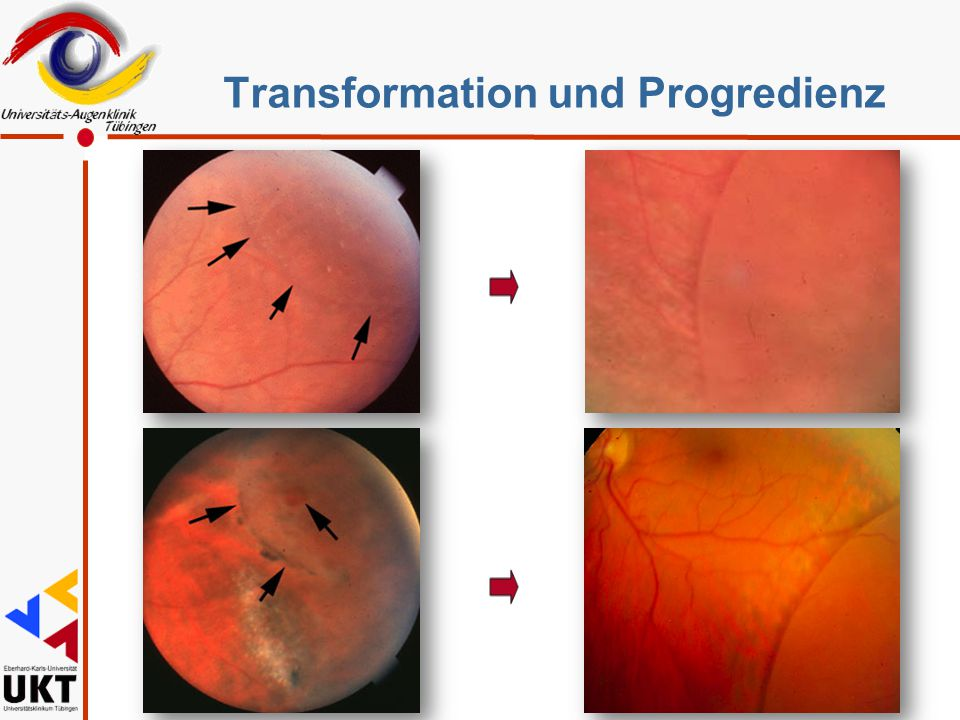 Transformation und Progredienz