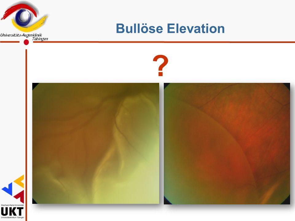 Bullöse Elevation Retinoschisis, selten therapiert, aber häufig gesehen, großes Thema, weil DD zur Ablatio.