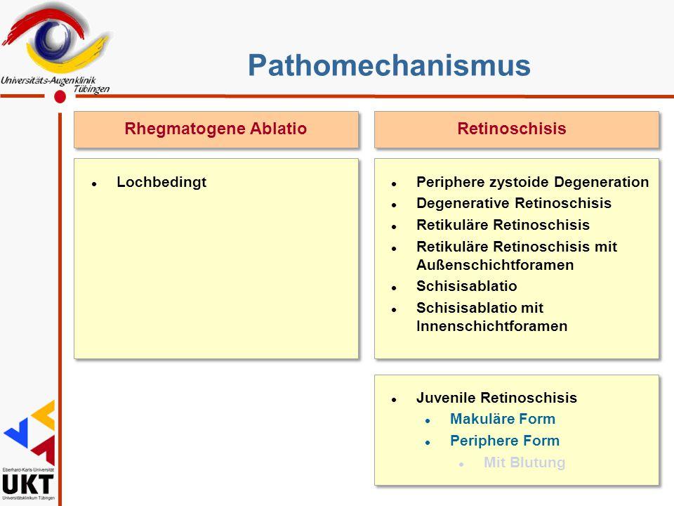 Pathomechanismus Rhegmatogene Ablatio Retinoschisis Sz Lochbedingt