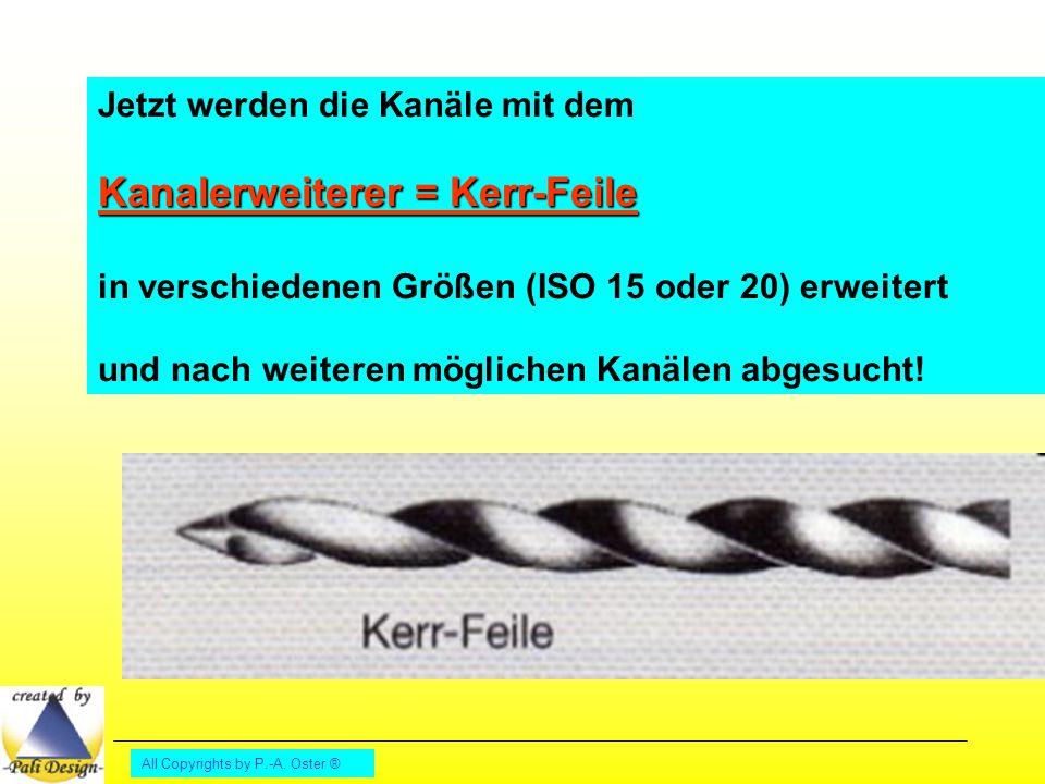 Kanalerweiterer = Kerr-Feile