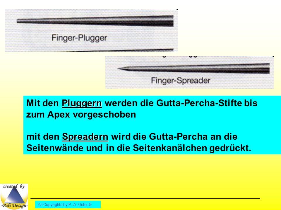 Mit den Pluggern werden die Gutta-Percha-Stifte bis zum Apex vorgeschoben