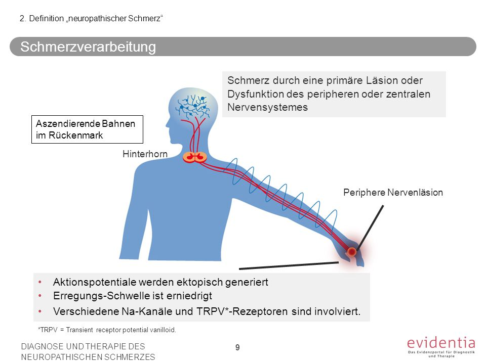 "2. Definition ""neuropathischer Schmerz"