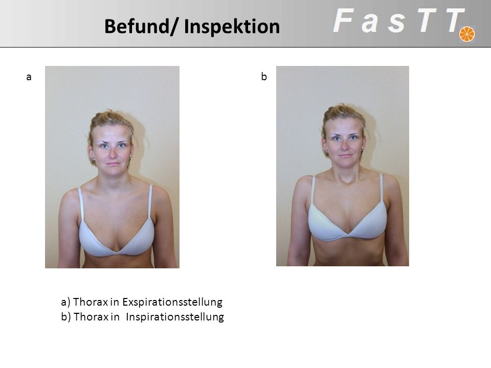 Befund/ Inspektion a b a) Thorax in Exspirationsstellung