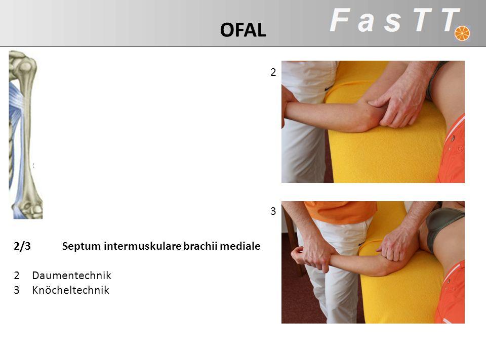 OFAL 2 3 2/3 Septum intermuskulare brachii mediale Daumentechnik