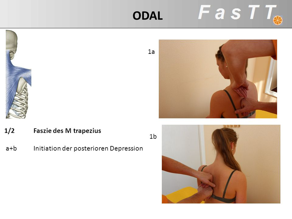 1/2 Faszie des M trapezius a+b Initiation der posterioren Depression