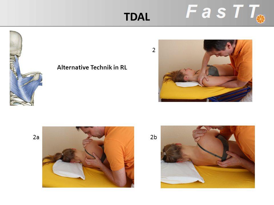 TDAL 2 Alternative Technik in RL 2a 2b Mm rhomboidei