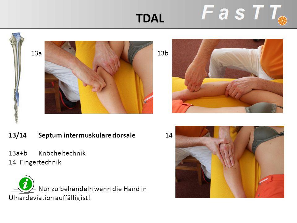 TDAL 13a 13b 13/14 Septum intermuskulare dorsale 13a+b Knöcheltechnik