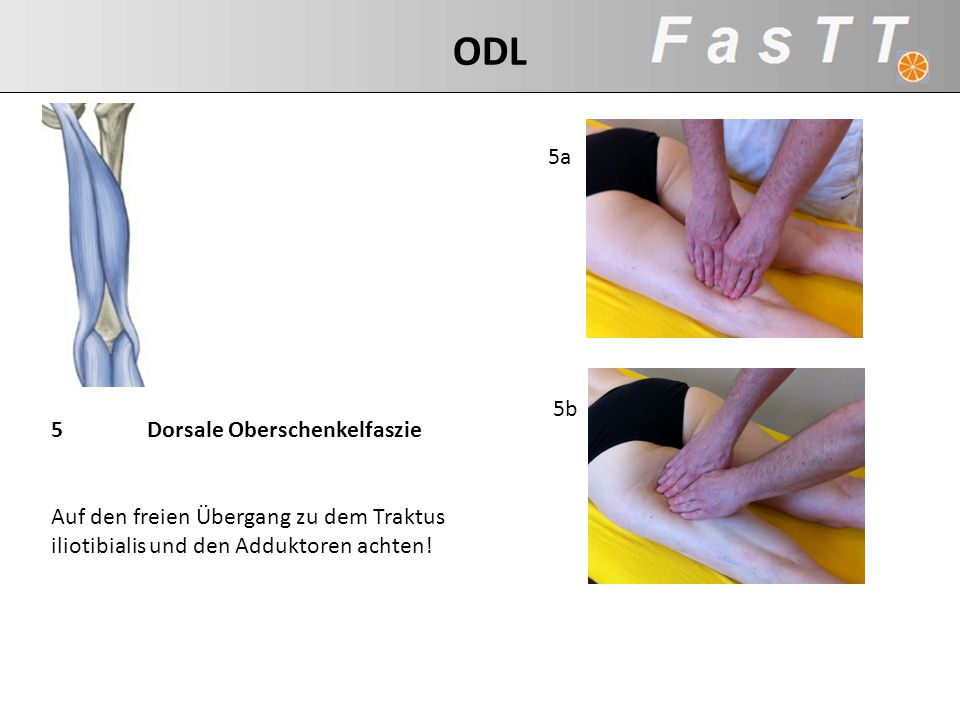 ODL 5a 5b 5 Dorsale Oberschenkelfaszie