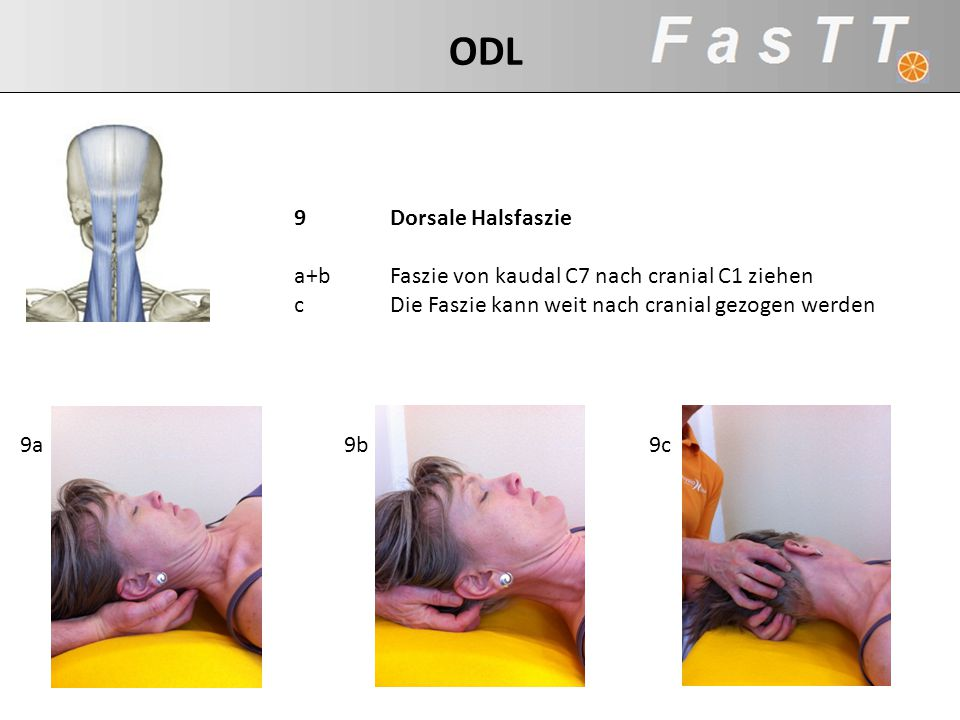 a+b Faszie von kaudal C7 nach cranial C1 ziehen