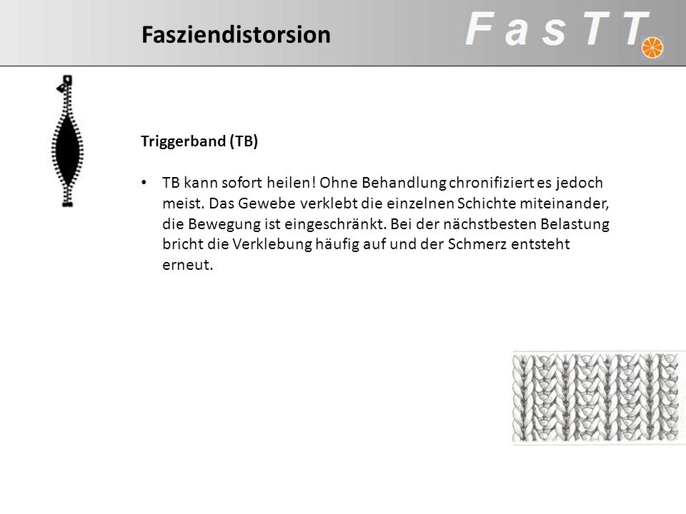 Fasziendistorsion Triggerband (TB)