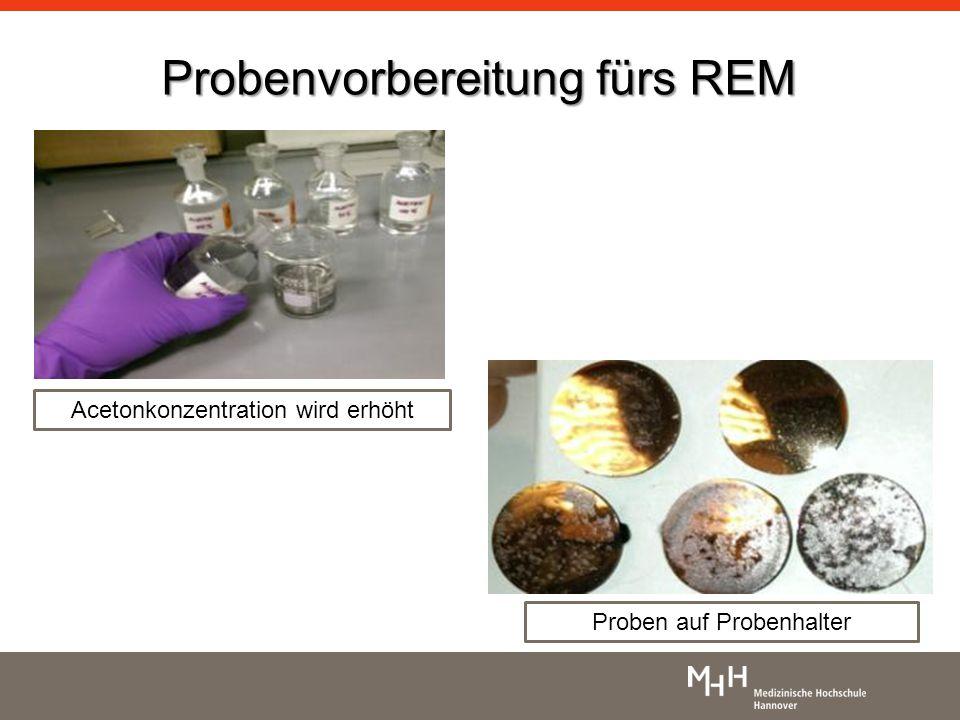 Probenvorbereitung fürs REM