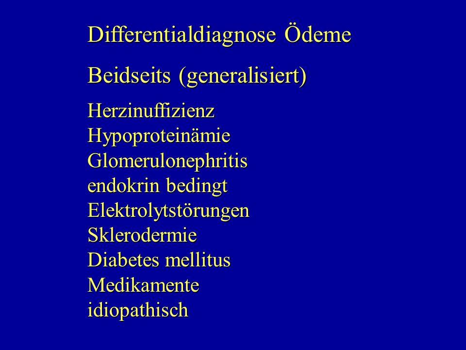Differentialdiagnose Ödeme Beidseits (generalisiert)