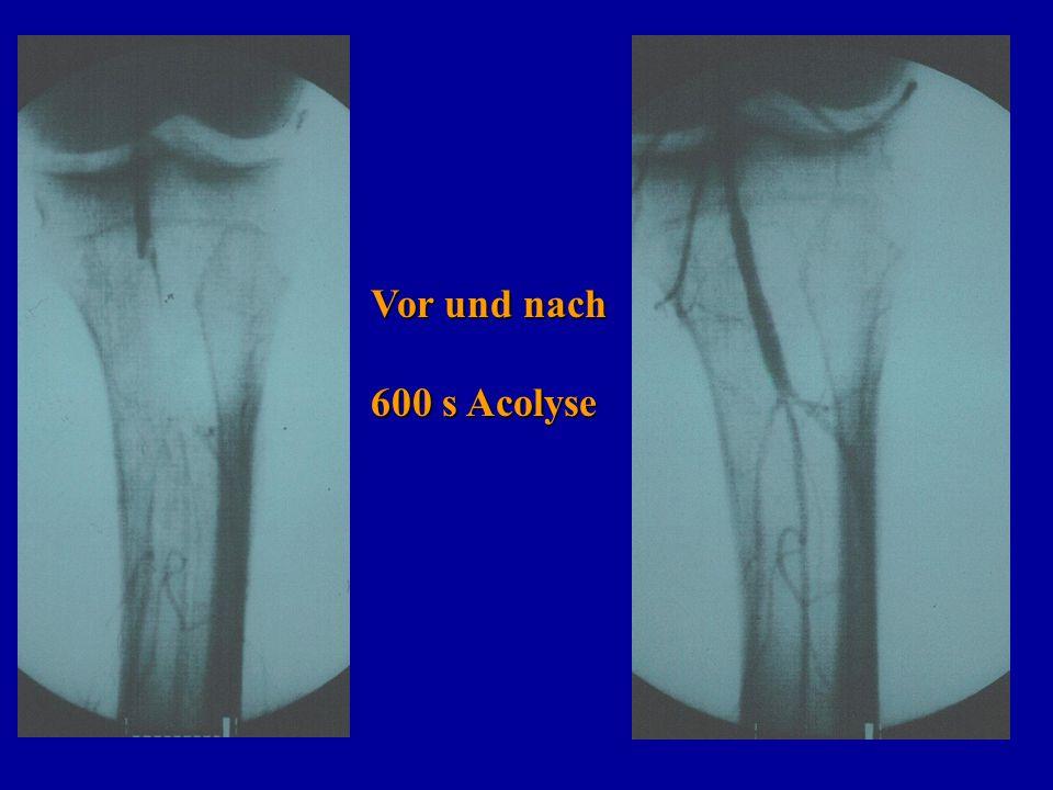 Vor und nach 600 s Acolyse