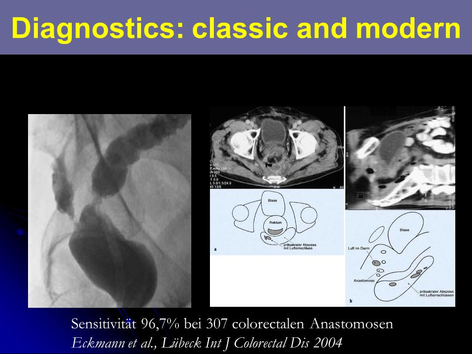 Diagnostics: classic and modern