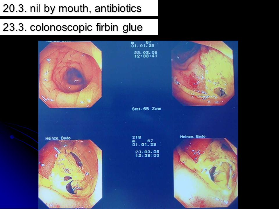 20.3. nil by mouth, antibiotics
