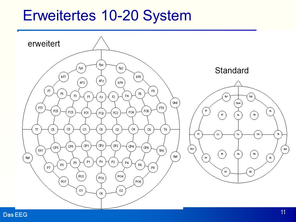 Erweitertes 10-20 System erweitert Standard