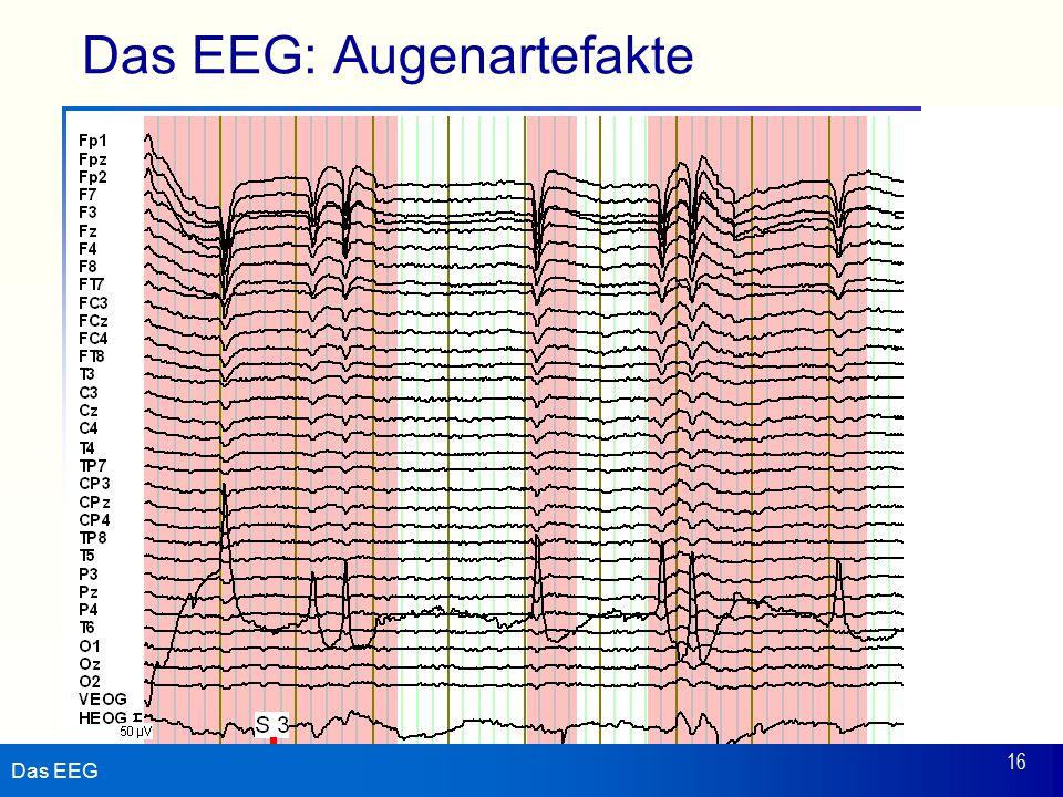 Das EEG: Augenartefakte