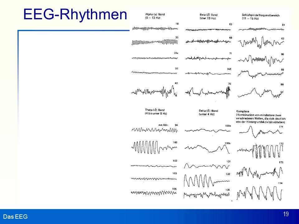 EEG-Rhythmen