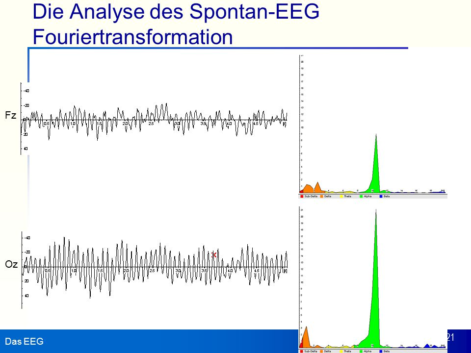 Die Analyse des Spontan-EEG Fouriertransformation