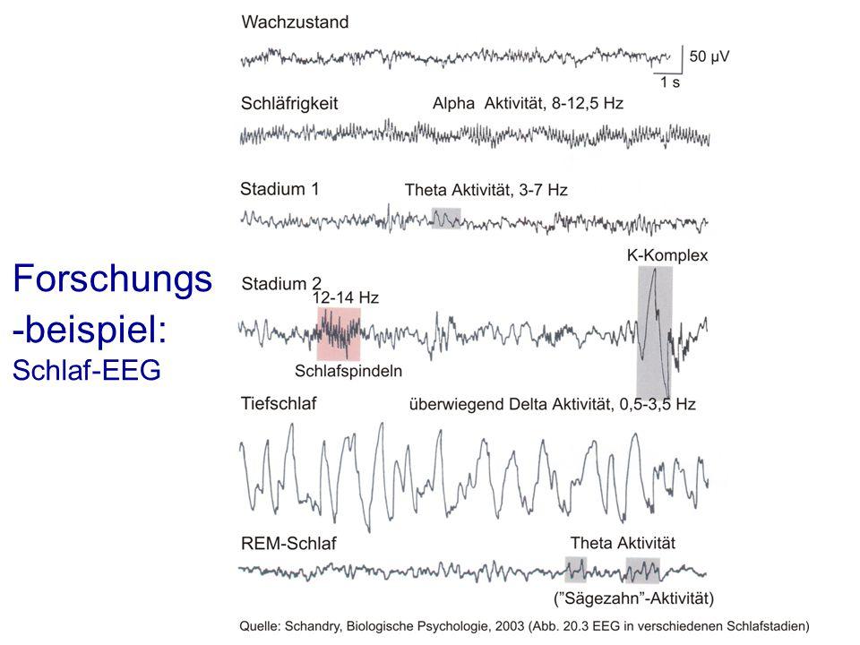 Forschungs-beispiel: Schlaf-EEG