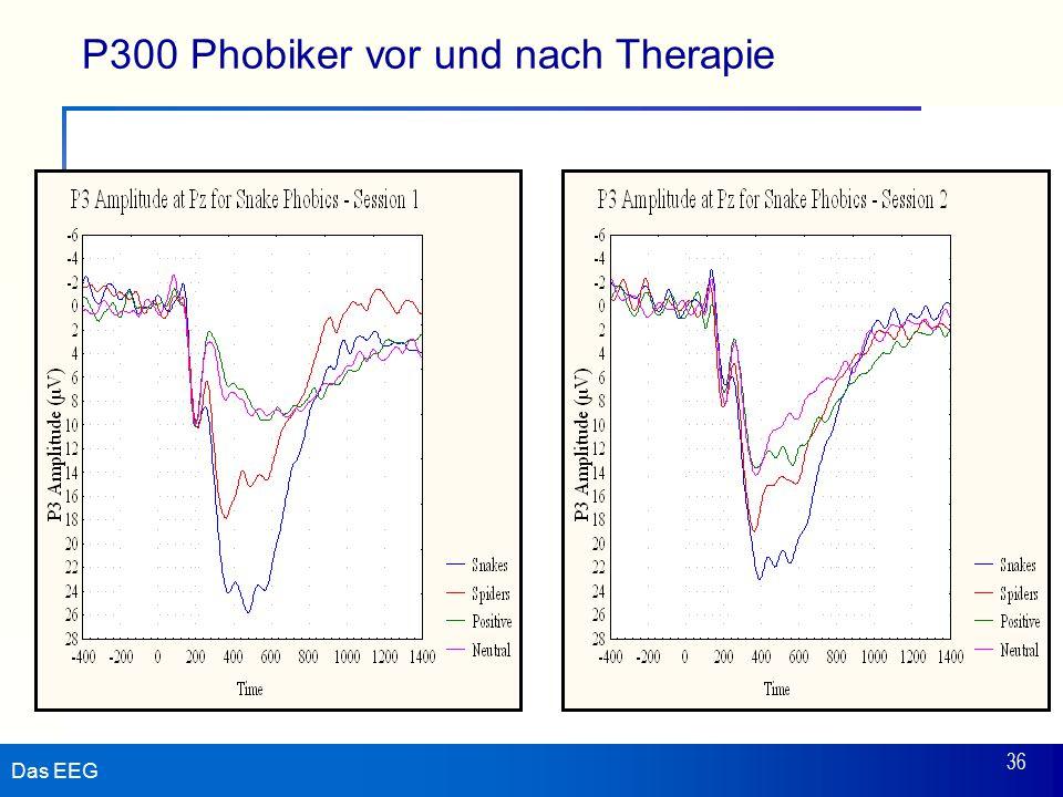 P300 Phobiker vor und nach Therapie