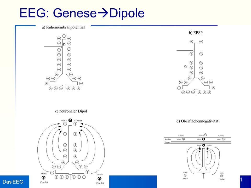 EEG: GeneseDipole