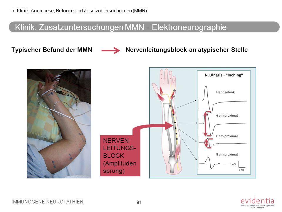 Klinik: Zusatzuntersuchungen MMN - Elektroneurographie