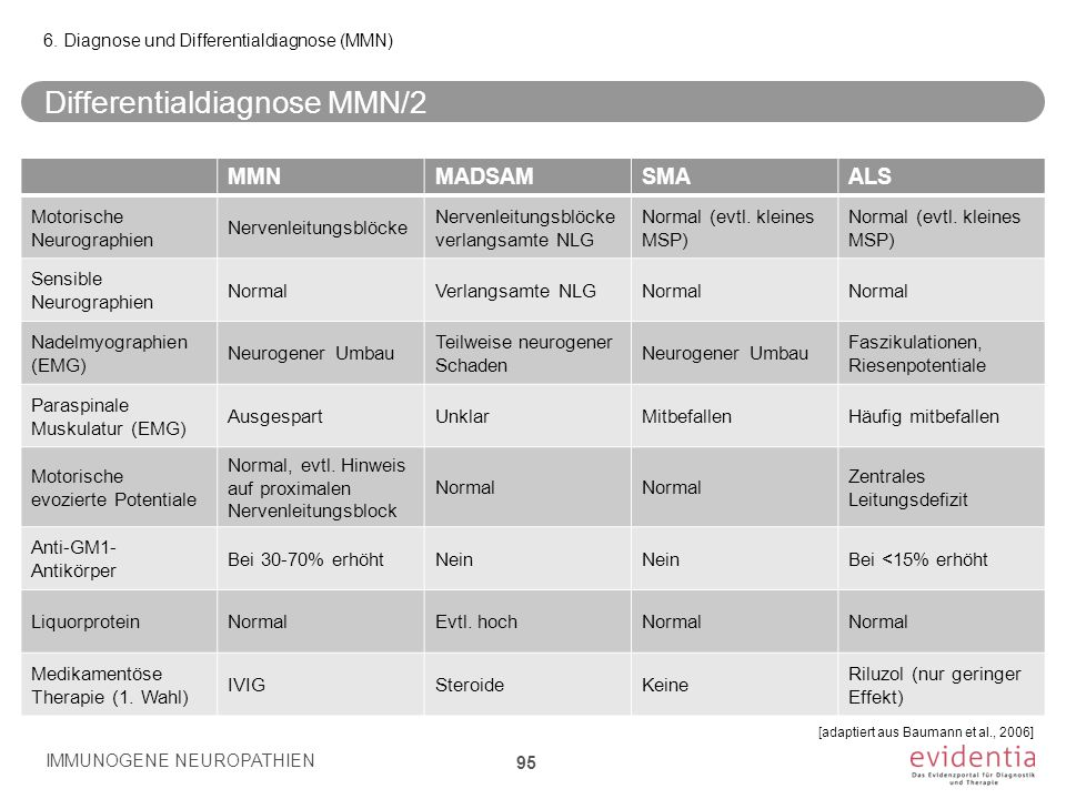 Differentialdiagnose MMN/2