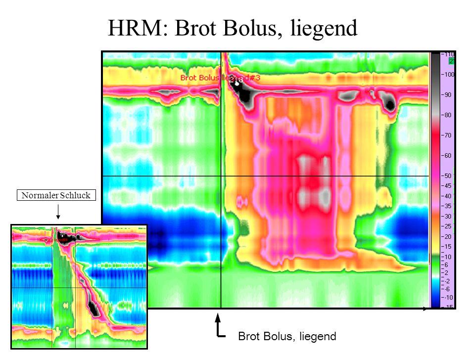 HRM: Brot Bolus, liegend