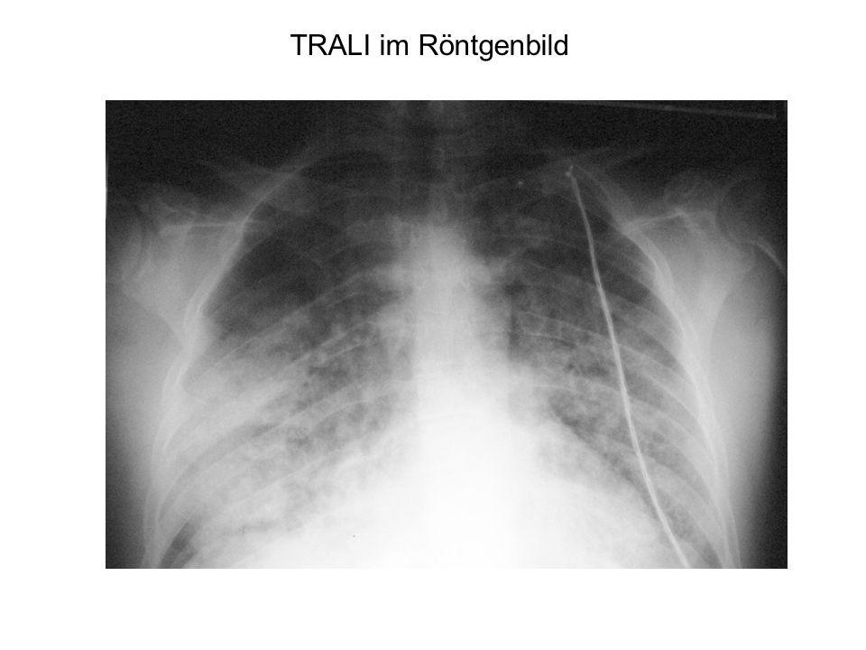 TRALI im Röntgenbild