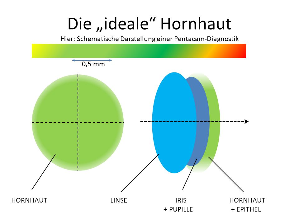 """Die """"ideale Hornhaut Hier: Schematische Darstellung einer Pentacam-Diagnostik"""