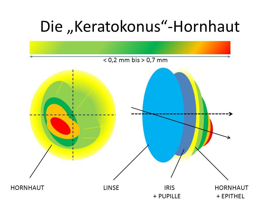 "Die ""Keratokonus -Hornhaut"