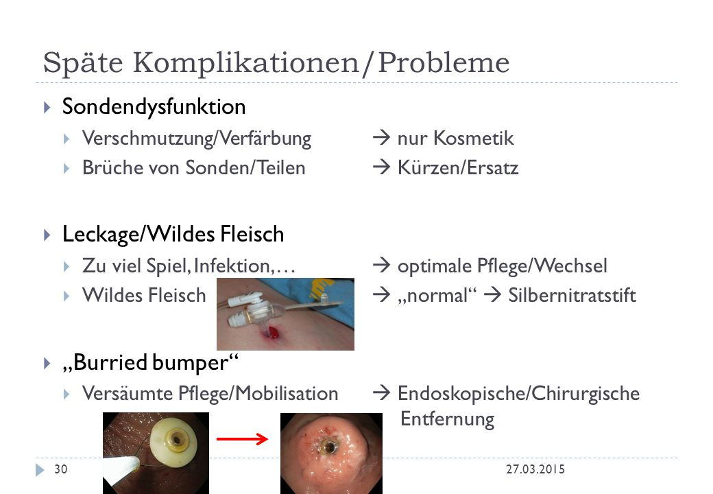 Späte Komplikationen/Probleme