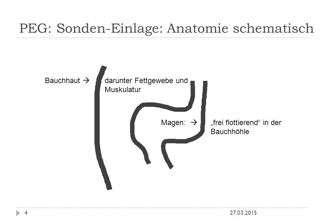 PEG: Sonden-Einlage: Anatomie schematisch