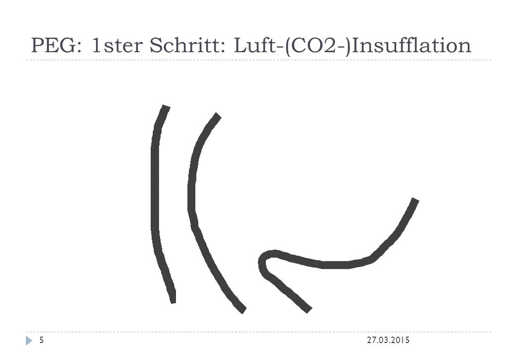 PEG: 1ster Schritt: Luft-(CO2-)Insufflation