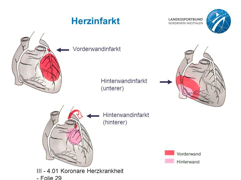 Herzinfarkt Vorderwandinfarkt Hinterwandinfarkt (unterer)