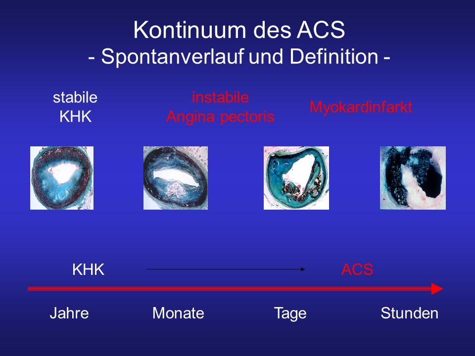Kontinuum des ACS - Spontanverlauf und Definition -