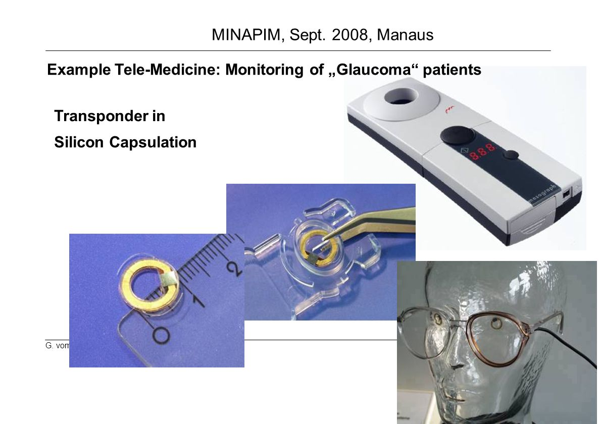 "Example Tele-Medicine: Monitoring of ""Glaucoma patients"