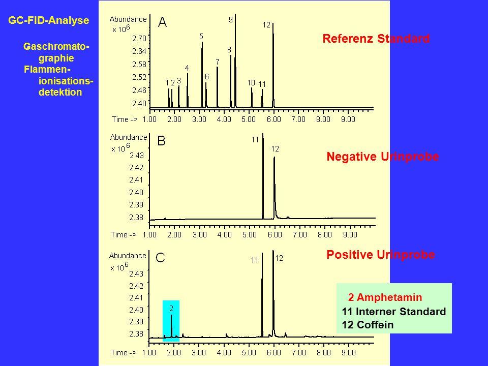 Referenz Standard Negative Urinprobe Positive Urinprobe