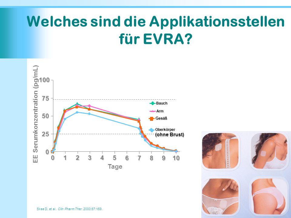 Welches sind die Applikationsstellen für EVRA