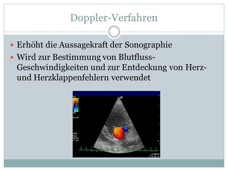 Doppler-Verfahren Erhöht die Aussagekraft der Sonographie